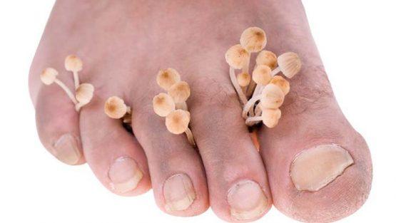 杀灭在你鞋子里的细菌和真菌